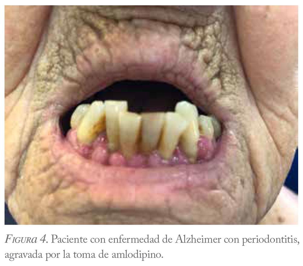 diabetes gestacional y enfermedad periodontal