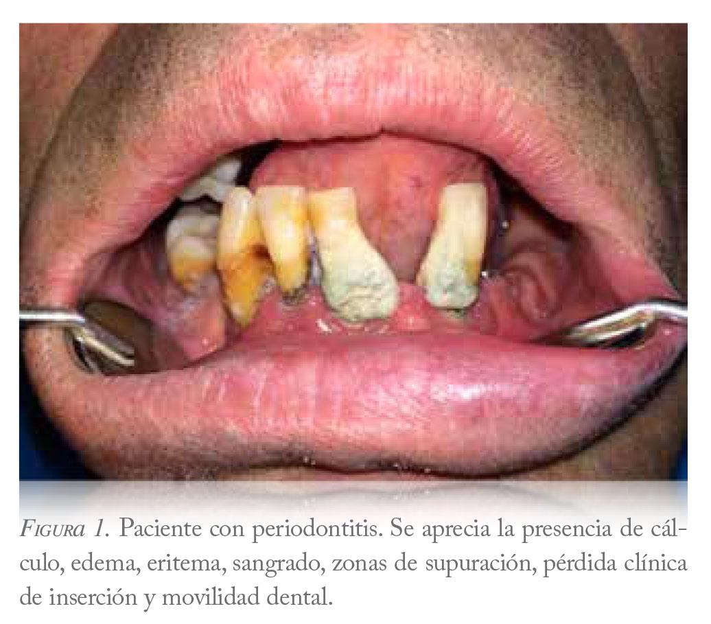 diabetes mellitus y enfermedad periodontal pdf