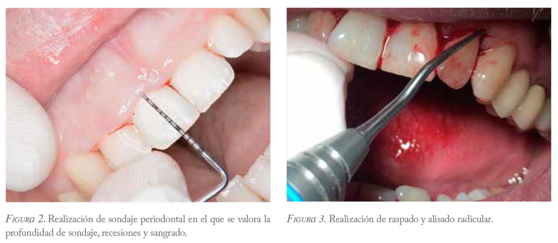 cálculo dental diagnóstico y tratamiento de diabetes